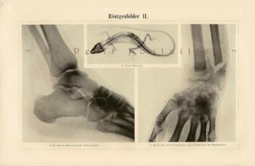 1899 Victorian X Ray Vision, Hand, Feet, Chest ... and a Green Lizard